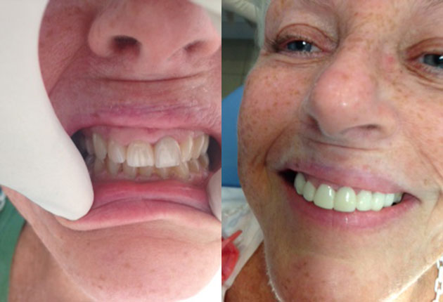 Before and after shots - the result of my dental tourism in Mexico. What a difference!